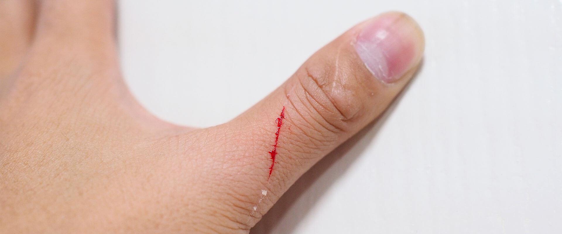 Qué tipo de herida tienes, ¿leve o crónica?